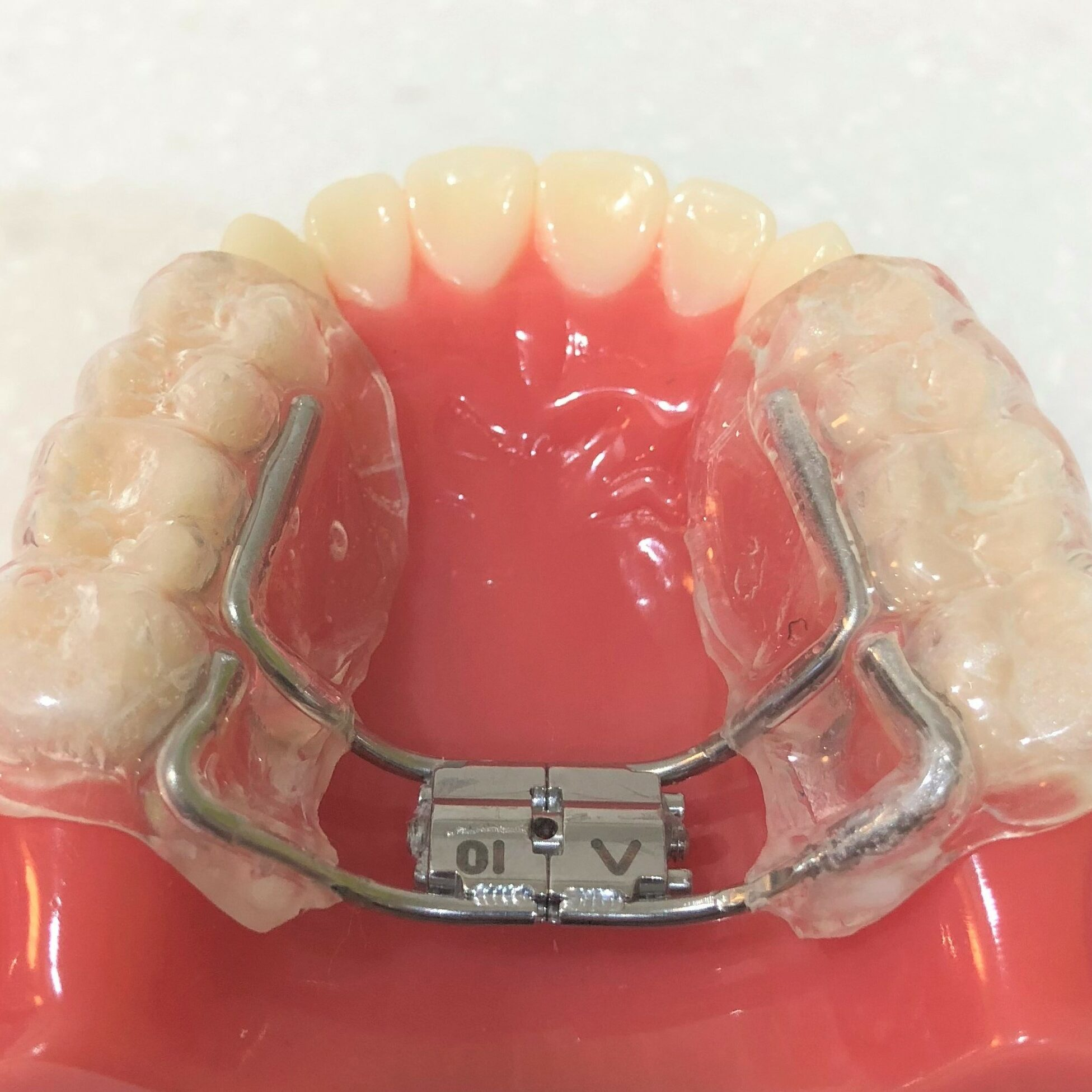 Upper expansion plate with plastic covering the molars and premolars. Widens the upper, makes more space and broadens the smile. Mark Cordato, specialist orthodontist, Bathurst, Blayney, Oberon, Mudgee.