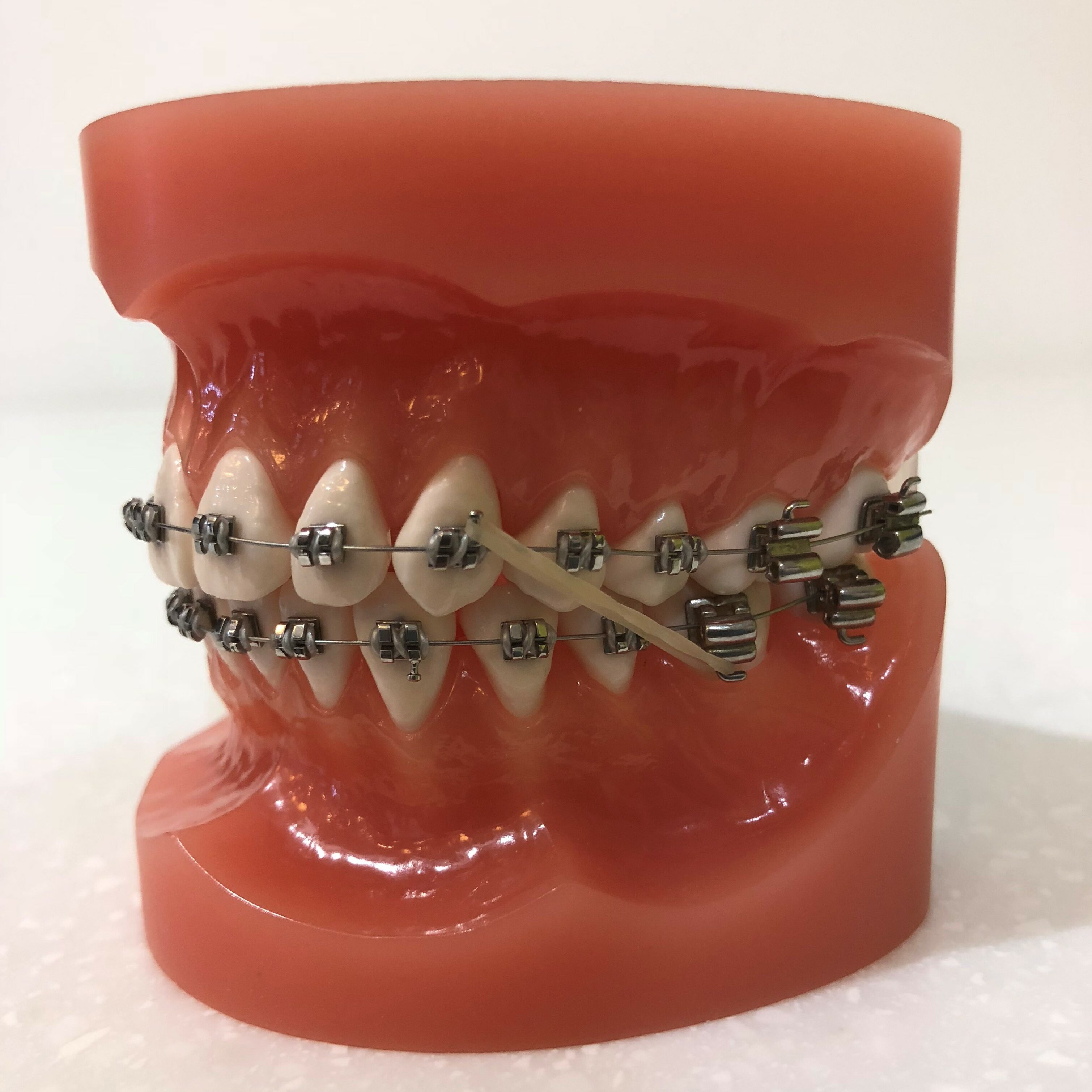 Braces and elastics at Creating great Smiles Bathurst. Mark Cordato, Specialist Orthodontist